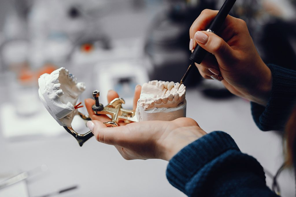 implantes-dentales-4
