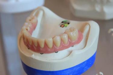 implantes-de-carga-inmediata-madrid-dentadura