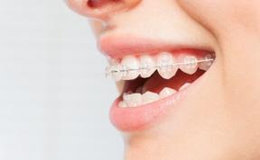 ortodoncia-vallecas-brakets-porcelana