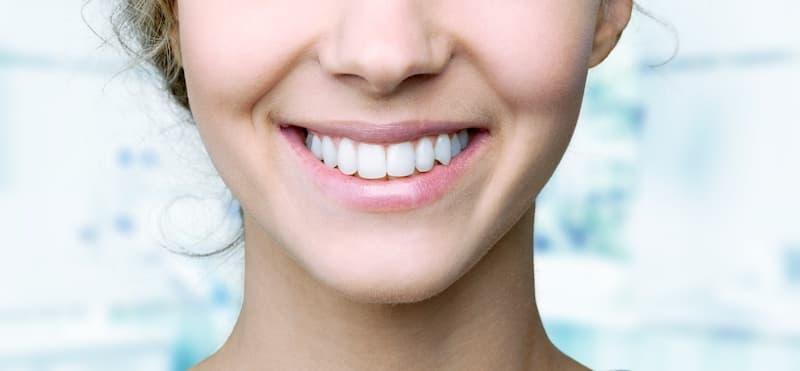 tratamientos-eficaces-sonrisa